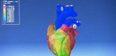 Órgãos virtuais são usados em testes de medicamentos