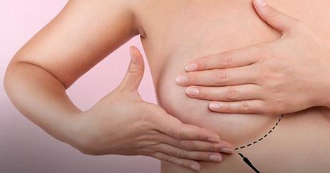 Autoexame câncer de mama