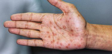 mão de paciente com sífilis