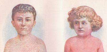 Ilustração de crianças com sarampo