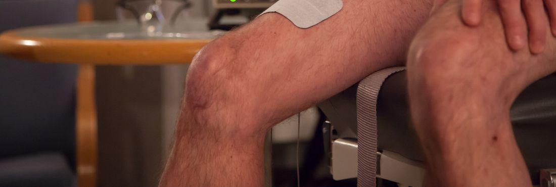 Síndrome de Guillain-Barré causa fraqueza e paralisia muscular