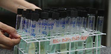 Teste para confirmação de tuberculose utilizando cultura da bactéria em ovos, tubos de ensaio em laboratório