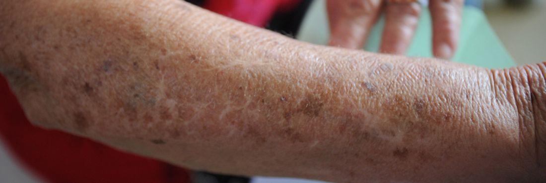Atenção à pele dos idosos: manchas e inflamações características da terceira idade
