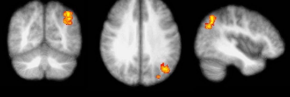 Exames de ressonância magnética funcional de portadores de tontura refratária ao tratamento sugerem atividade exacerbada nas vias cerebrais relacionadas com ansiedade e medo