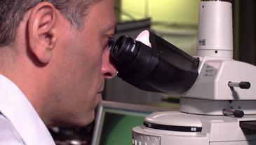 Proteína que sinaliza para o Alzheimer só pode ser vista por nanoscópio