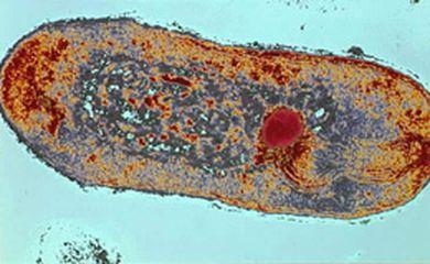 Lâmina com os bacilos da tuberculose