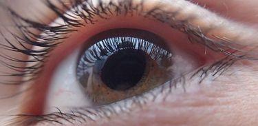 Catarata no olho