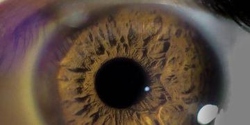 Oftalmologista fala de queimaduras oculares por álcool em gel em crianças