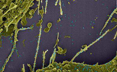 Imagens produzidas pela Fiocruz mostram o novo coronavírus Sars-COV-2 em ação.