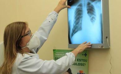 Exame para detectar tuberculose