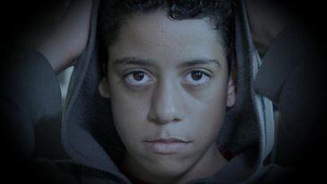 Kelvin nasceu com uma malformação em uma orelha. Sofreu bullying na escola por conta disso.