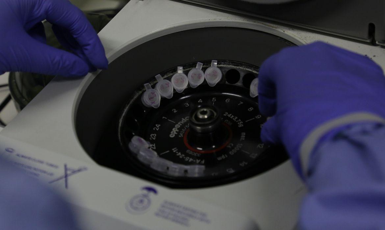 Diagnóstico laboratorial de casos suspeitos do novo coronavírus (2019-nCoV), realizado pelo Laboratório de Vírus Respiratório e do Sarampo do Instituto Oswaldo Cruz (IOC/Fiocruz), que atua como Centro de Referência Nacional em Vírus
